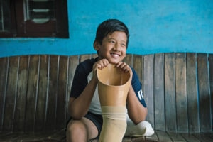 Nishan, 14, from Nepal, lost his leg at the age of five. Now he can walk again with support from STRIDE. Photo courtesy of HI.