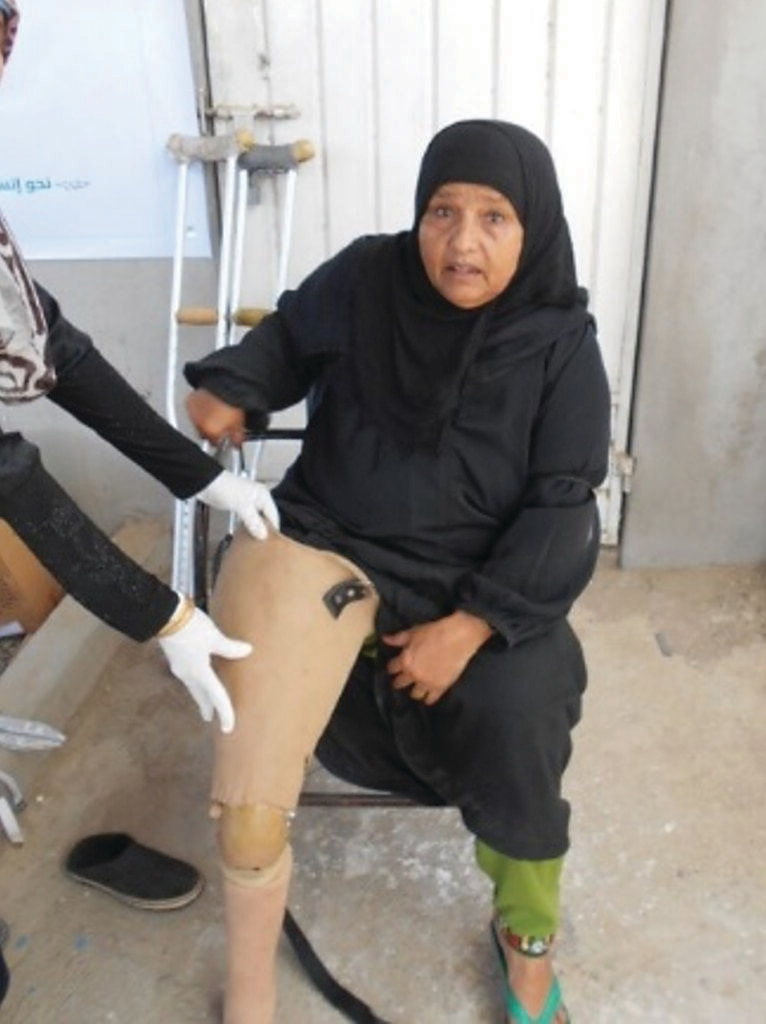 Asma is fitted for a prosthetic leg. [Photo and story courtesy of YALS, supported by the Marshall Legacy Institute.]